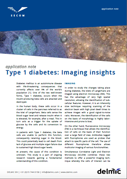 SECOM Application Note Type 1 Diabetes THUMBNAI