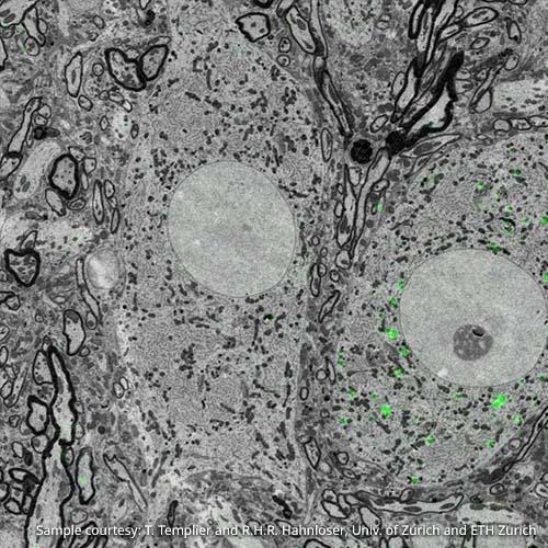 neuroscience-overlay.jpg