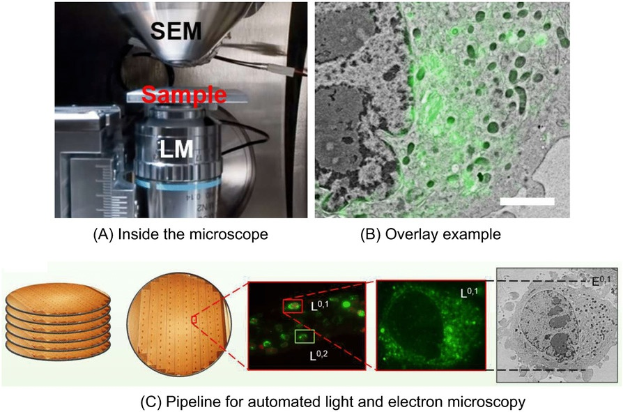 Automated detection of fluorescent cells for integrated light and electron microscopy: a new paper review